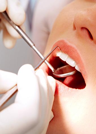 Diş nasıl beyazlatılır?
